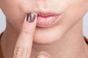 للتخلص من الاسوداد حول الفم...7 خطوات سريعة وسهلة