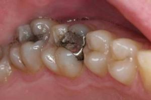 لهذا السبب يجب أن تنزعوا حشوة أسنانكم وأسنان أولادكم تماماً وفوراً !