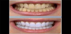 الخلطات الطبيعية لتبييض وتفتيح الأسنان
