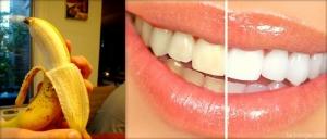 قشور الموز لتبيض الاسنان