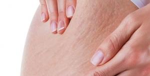 تخلصي من تمدد الجلد بوصفات طبيعية في 10 أيام فقط