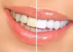 وصفة  هائلة لتبييض الأسنان خلال ساعة واحدة