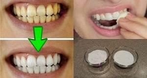 وصفة هائلة تمنحك أسنانا بيضاء من الاستعمال الأول