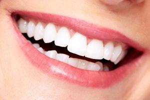 تخلصي من اصفرار الأسنان باعتماد هذه الوصفة السحرية المميزة