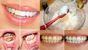 تخلص من اصفرار الأسنان وأعد لأسنانك بياضها وبريقها بفترة قصيرة