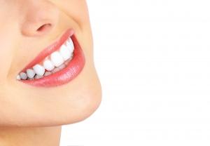 استخدمي معجون الكركم للتخلص من اصفرار الأسنان في دقائق
