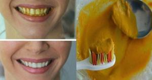 دنيا الجمال  وصفة قوية لتبييض الأسنان من أول استعمال.. لا تفوتيها