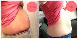 ليك ما فعلته هذه السيدة للتخلص من 5 كيلو في أسبوعين فقط!