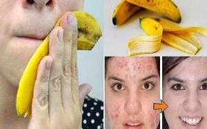 6 إستخدامات لقشور الموز ستجعلك تتوقفين عن رميها
