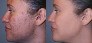 وصفة طبيعية للتخلص من بقع الوجه الداكنة في 15 دقيقة.. لا تفوتيها