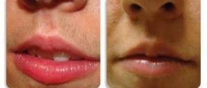 وصفة طبيعية لإزالة الشعر الزائد من الوجه وفوق الشفتين