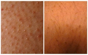 ب 4 خطوات سهلة و مبسطة يمكنكِ التخلص من الشعر تحت الجلد المزعج