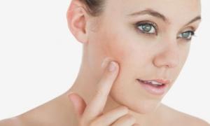 عالجي احمرار الوجه وحساسيته بسهولة مع هذه الوصفة