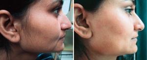 ماسك العسل والمشمش للتخلص من شعر الوجه الزائد