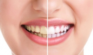 تخلصي من اصفرار الأسنان بهذه الوصفة الطبيعية