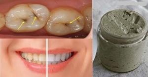 اصنعي معجون أسنان طبيعي وصحي في منزلك