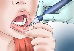 وصفات طبيعية تمنحك علاجا فعالا لتقرحات الفم الباردة
