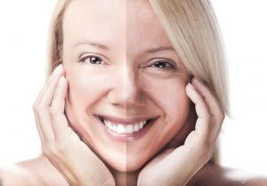 وصفة هائلة للقضاء على بقع الوجه الداكنة