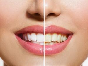 تبييض الأسنان خلال دقيقتين فقط بخلطة يابانية طبيعية منزلية فعالة