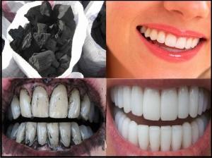 مكون واحد فقط يخلصك من إصفرار الأسنان من أول استعمال