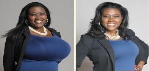 4 وصفات طبيعية لتصغير الثدى دون عمليات جراحية