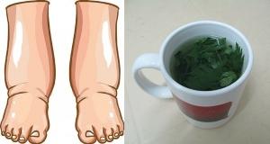 جربي هذا الشاي الطبيعي للتخلص من تورم القدمين